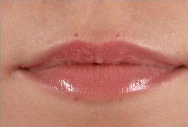 fuller-looking-lips