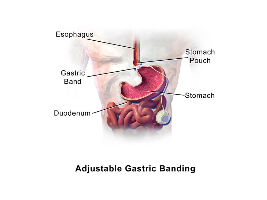 gastric-band-surgery